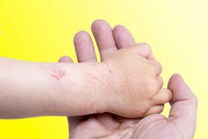 nuova crema dermatite atopica-2